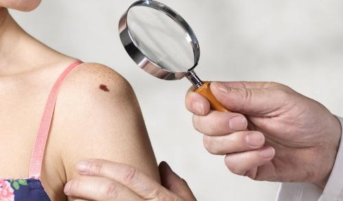 10 dấu vết bất thường trên cơ thể chỉ điểm ung thư