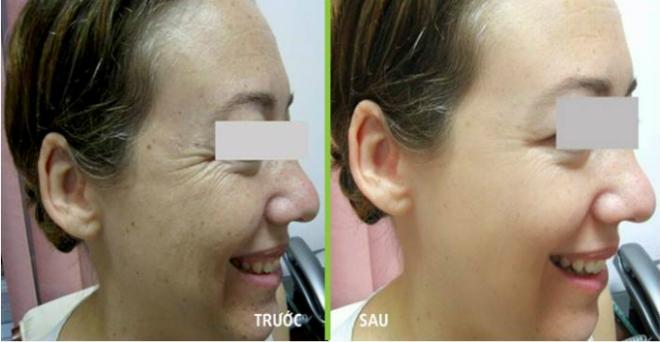 Theo bác sĩ Tú Dung, JW sẽ lấytế bào gốc tự thân của khách hàng, sau đó chuyển sang Singapore để chiết tách và nuôi cấy trong thời gian ba tuần (mộttế bào nhân thành 10.000 tế bào). Sau đó, số tế bào này được chuyển ngược về Việt Nam và ứng dụng làm đẹp cho chị em. Hoạt động lưu trữ tế bào diễn ra khi bạn có nhu cầu sử dụng cho tương lai, JW sẽ hỗ trợ lưu trữ.Tế bào gốc tự thân được lưu trữ có khả năng trẻ hóa gương mặt, làm đầy các vùng lõm trên cơ thể (trị nếp nhăn vùng mặt, nâng ngực,nâng mông, làm đầy mu bàn tay).Xem thêm hình ảnh trẻ hóatại đây.