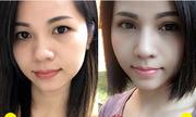 Tân trang đôi mắt với công nghệ thẩm mỹ chuẩn Hàn