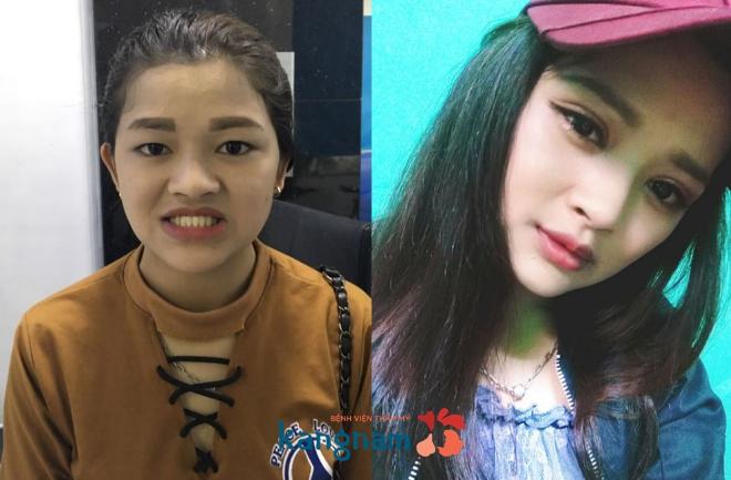 nhung-giai-phap-thm-my-duoc-yeu-thich-tai-kangnam-nam-2017-1