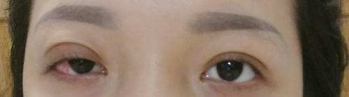 Bác sĩ chẩn đoánHuỳnh Sương bị liệt cơ mí mắt vĩnh viễn. Ảnh: Nhân vật cung cấp.