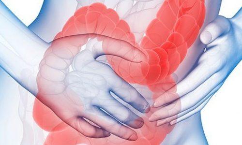 Bạn có thể bị ung thư đại tràng khi sụt cân, đi ngoài ra máu