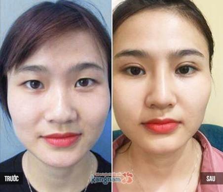 HÌnh ảnh trước và sau phẫu thuật cắt mí của Hoàng Hương.