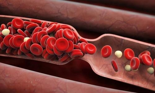 6 dấu hiệu cảnh báo cục máu đông nguy hiểm