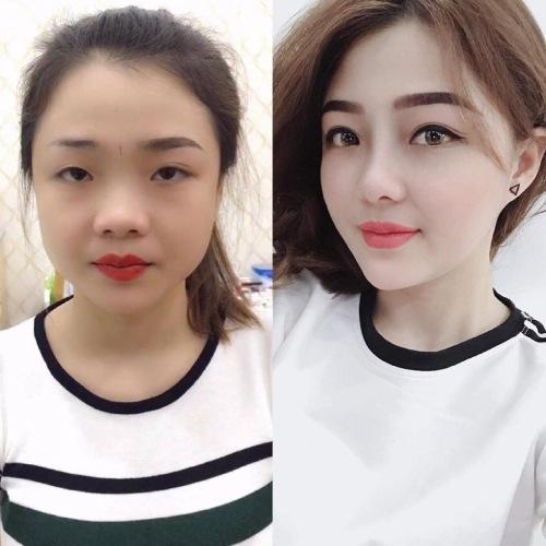 Trước và sau khi phẫu thuật thẩm mỹ. Ảnh: C.K