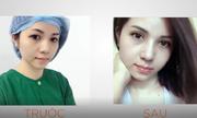 Trẻ hóa đôi mắt với phẫu thuật cắt mí Hàn Quốc Plasma