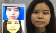 Cận cảnh khách hàng sau khi chữa sụp mí mắt bẩm sinh tại Kangnam