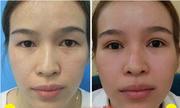 Làm thế nào để khắc phục tình trạng da thừa mí mắt?