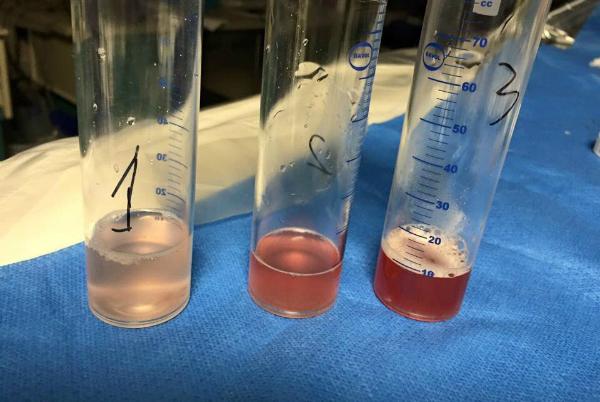 Dịch rửa phế quản có máu đỏ tươi từ lợt đến đậm, lợn cợn máu đông ít.