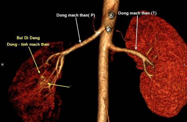 Hình chụp CT của người bệnh.