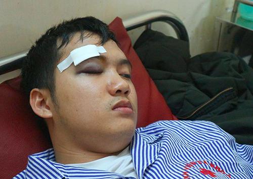 Sinh viên Tân bị đánh gây chảy máu mắt. Ảnh: D.H.