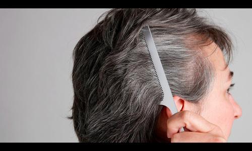 Mái tóc tiết lộ tình trạng sức khỏe của bạn