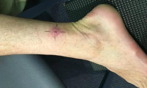 Chân một bệnh nhân bị loét da Buruli. Ảnh: BBC.
