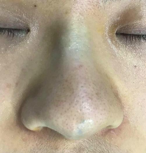 Mũi xuất hiện màu xanh sau nâng mũi bằng chỉ. Ảnh: H.T