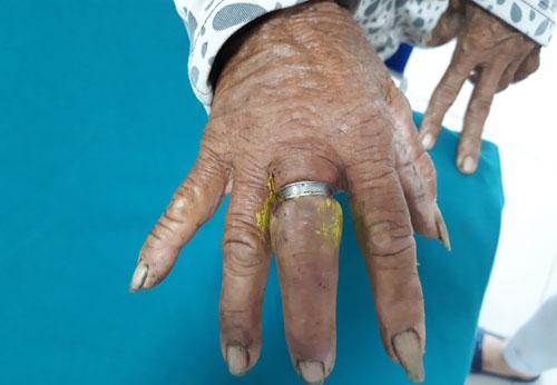 Suýt mất ngón tay vì đeo nhẫn quá chật