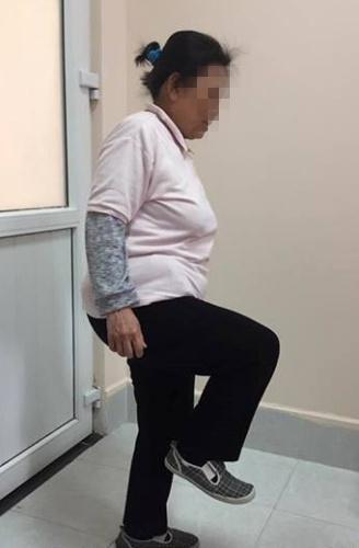 Sau 20 năm, bệnh nhân đã có thể đi lại như bình thường. Ảnh: T.N.