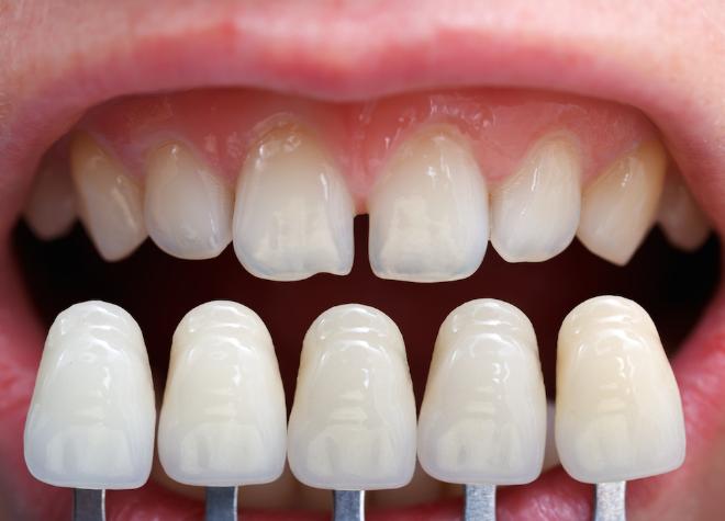 Chuyên gia chia sẻ ưu và nhược điểm của răng sứ thẩm mỹ - 1
