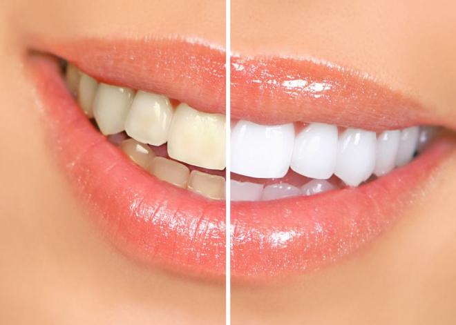 Trước và sau khi bọc răng sứ thẩm mỹ.