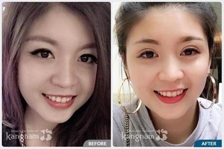 Đôi mắt khác biệt trước và sau thẩm mỹ ma
