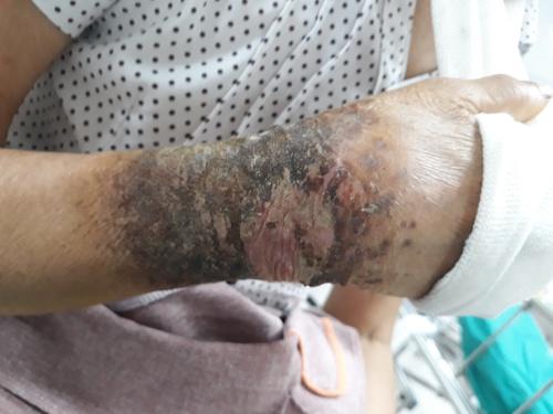 Tự tháo bó bột để đắp lá chữa gãy xương, người phụ nữ suýt mất tay