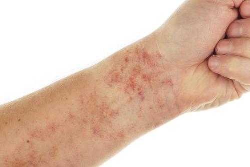 Bệnh nhân lupus nổi các chấm đỏ trên da do mạch máu bị rò rỉ. Ảnh: Prevention.