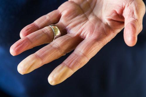 Ngón tay đổi màu do hội chứng Raynaud. Ảnh: Prevention.