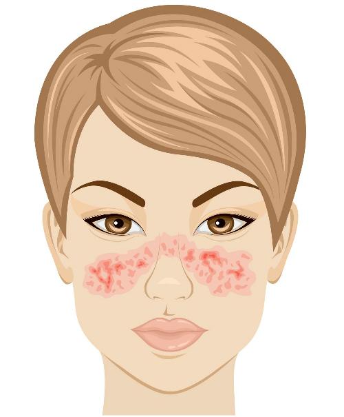 Vết phát ban hình con bướm cảnh báo nguy cơ mắc bệnh lupus. Ảnh: Pinterest.