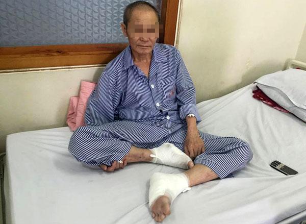 Bệnh nhân bị bỏng nặng ở hai  bàn chân. Ảnh: T.N.