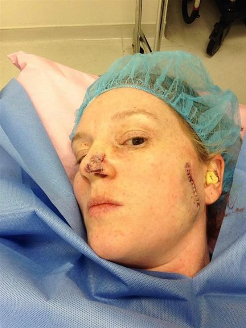 86 lần phẫu thuật chữa ung thư do nghiện nhuộm da