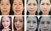 Nguyên nhân gây hiện tượng bọng mỡ mắt ở phụ nữ