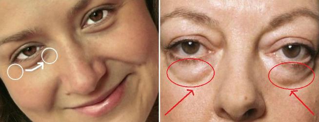 Nguyên nhân gây hiện tượng túi mỡ dưới mắt