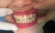 Mang họa sau khi đính 12 viên đá kim cương vào răng