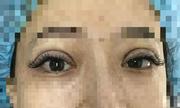 Vì sao mắt nhìn bị lệch sau một tuần cắt mí?