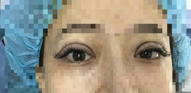 Tại sao mắt nhìn bị lệch sau một tuần cắt mí?