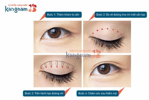 Bấm mí mắt duy trì kết quả trong bao lâu?