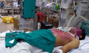 Dùng sai thuốc trị thủy đậu, thanh niên 28 tuổi nguy kịch