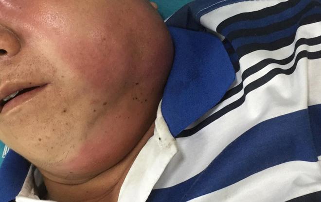 Bệnh nhân bị áp xe vùng mặt. Ảnh:L.Q