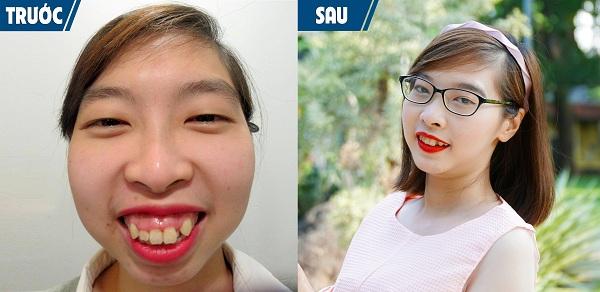 Quỳnh Hoa trước và sau khi phẫu thuật thẩm mỹ.