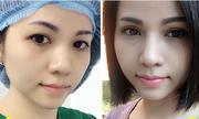 Quy trình ghép mỡ và cắt mí trên cho đôi mắt 'không tuổi'