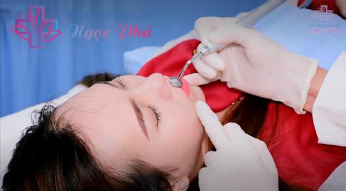 Bệnh viện Thẩm mỹ Ngọc Phú ra mắt công nghệ phun môi Barbie Lips - 2