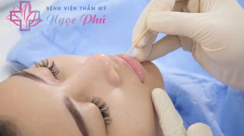 Bệnh viện Thẩm mỹ Ngọc Phú ra mắt công nghệ phun môi Barbie Lips - 1
