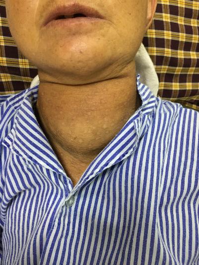 Bưới giáp khổng lồ trên cổ bệnh nhân. Ảnh: L.Q