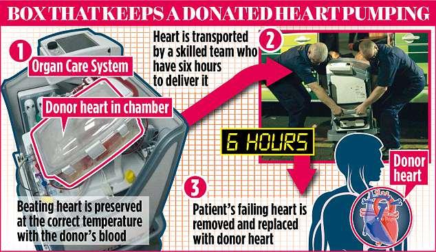 Hệ thông chăm sóc nội tạng giúp trái tim vẫn đập khi cắt rời cơ thể.