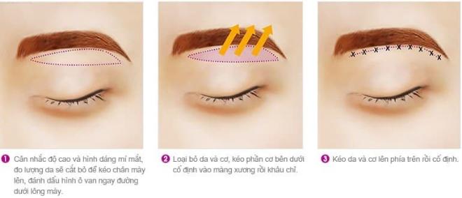 5 công nghệ thẩm mỹ mắt nổi bật tại Kangnam - 1