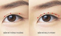 5 công nghệ thẩm mỹ mắt nổi bật tại Kangnam