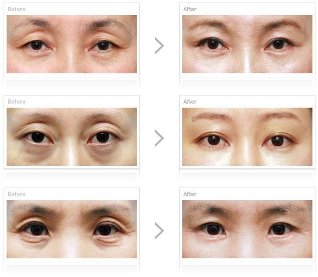 5 công nghệ thẩm mỹ mắt nổi bật tại Kangnam - 2