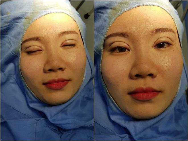 Nữ sinh sở hữu đôi mắt rạng rỡ sau cắt mí - 2