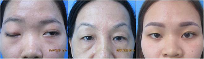 Những tình trạng mắt cần tới phẫu thuật thẩm mỹ.