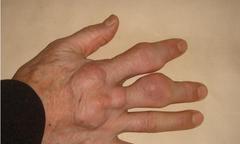 Biến dạng chân tay do tự dùng thuốc giảm đau gout