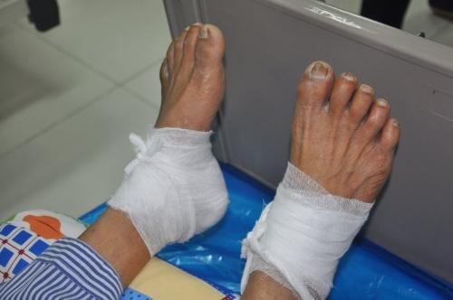 Bàn chân của bệnh nhân bị bỏng nặng, có dấu hiệu hoại tử lan rộng. Ảnh: Bệnh viện cung cấp.